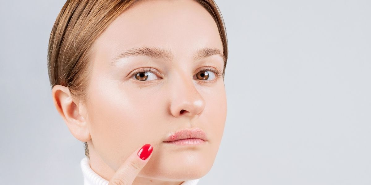 How To Get Rid Of A Cold Sore Fast: Short-Term Fixes and Long-Term Solutions